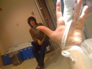 Damon's damaged hand